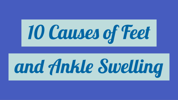 10 Causes of Feet and Ankle Swelling